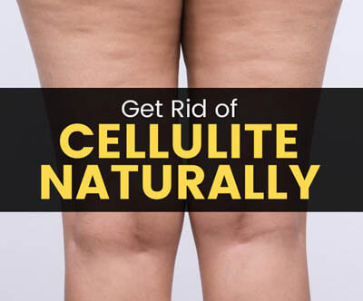 remove cellulite naturally